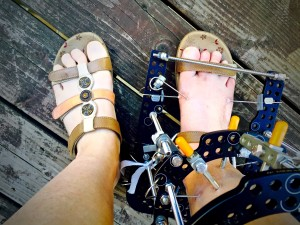 My flat foot wearing a modified sandals and ready to walk.